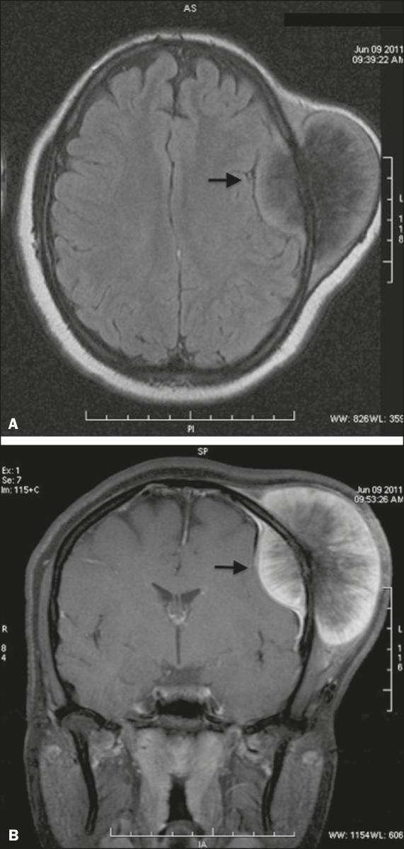 Osteossarcoma primário da calota craniana