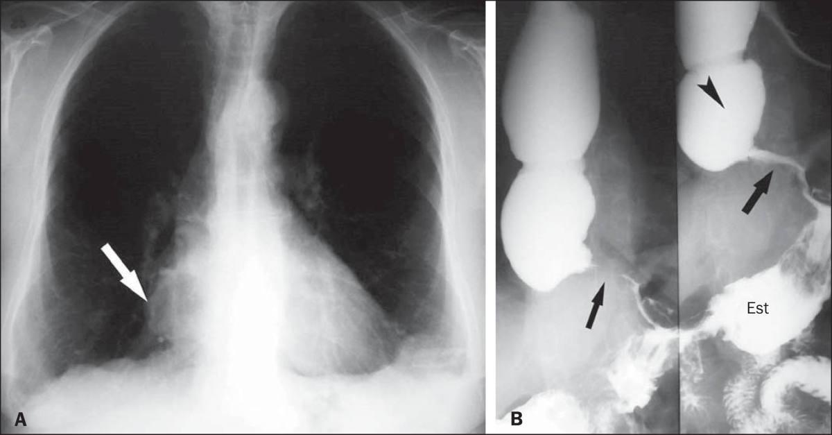 Alterações radiológicas encontradas no megaesôfago chagásico em radiografias simples de tórax e esofagogramas