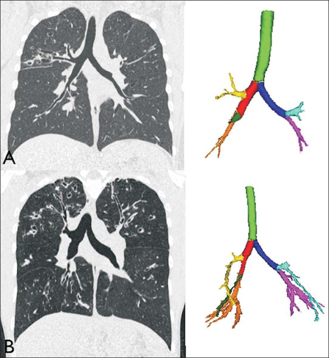 Análise quantitativa por tomografia computadorizada das vias aéreas, usando programa automático, em pacientes com fibrose cística: avaliação da gravidade em correlação com a espirometria