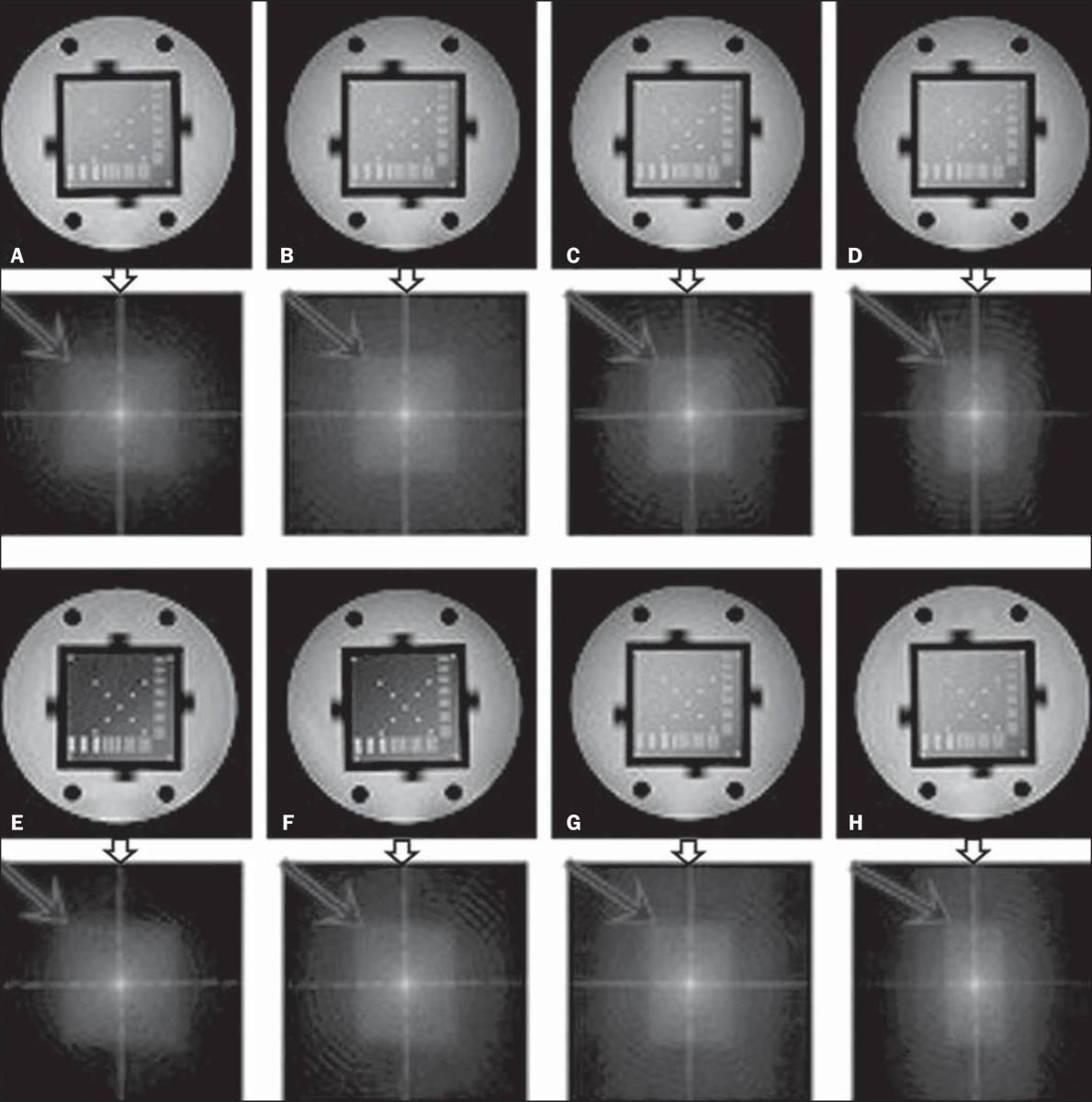 Influência do preenchimento parcial do espaço K na qualidade da imagem de ressonância magnética