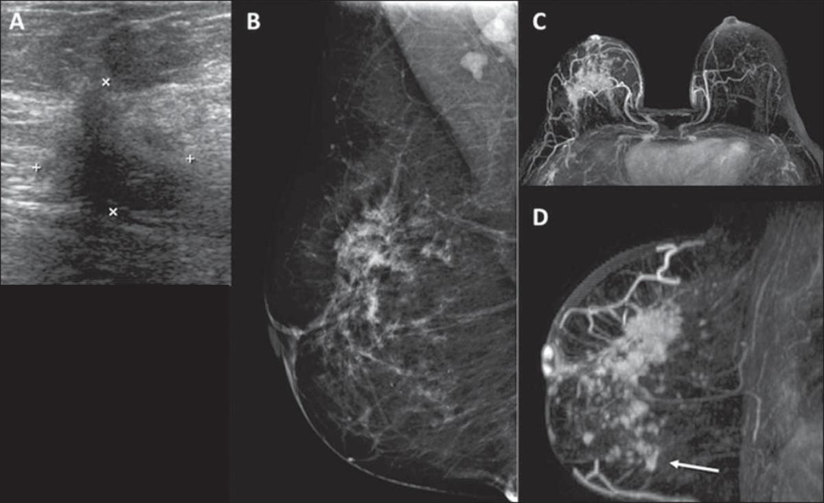 Papel da ressonância magnética no planejamento terapêutico das pacientes com câncer de mama: comparação com exames convencionais