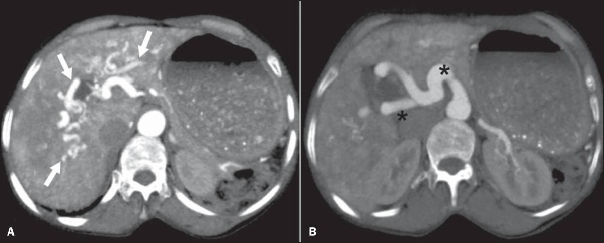 Síndromes vasculares abdominais: achados de imagem característicos