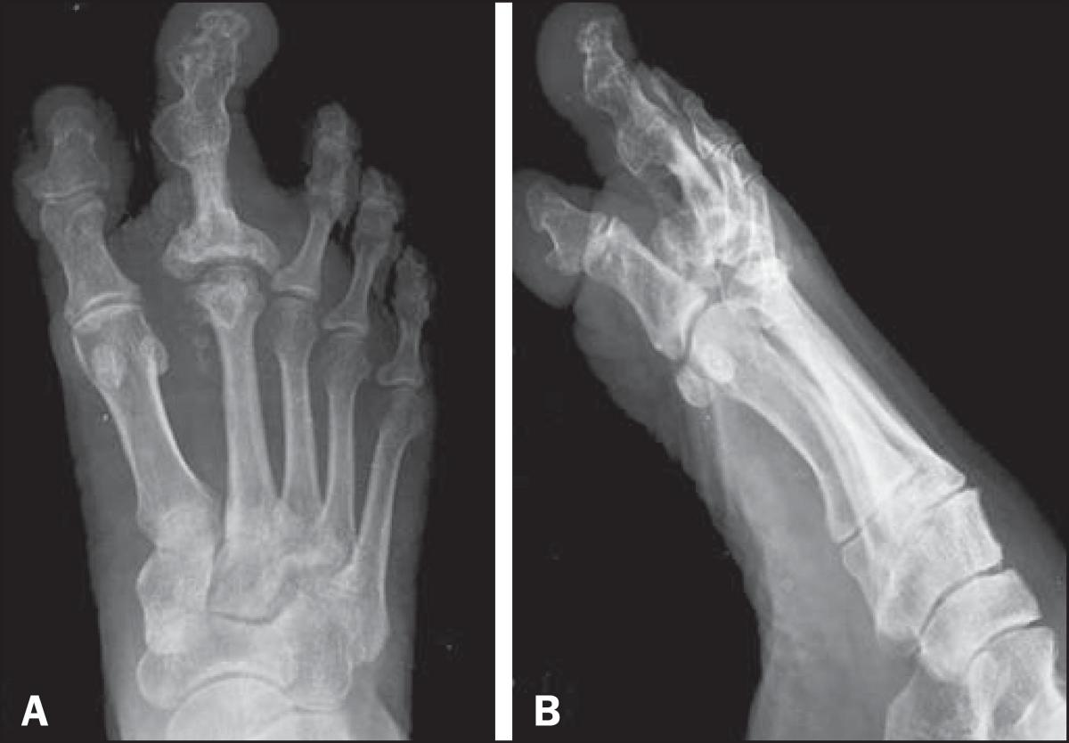X-ray and computed tomography findings in macrodystrophia lipomatosa of the foot with secondary osteoarthritic changes diagnosed in an elderly female: a case report