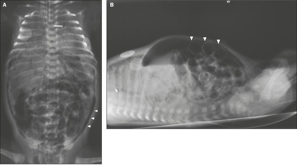 Achados radiológicos associados ao óbito de recém-nascidos com enterocolite necrosante