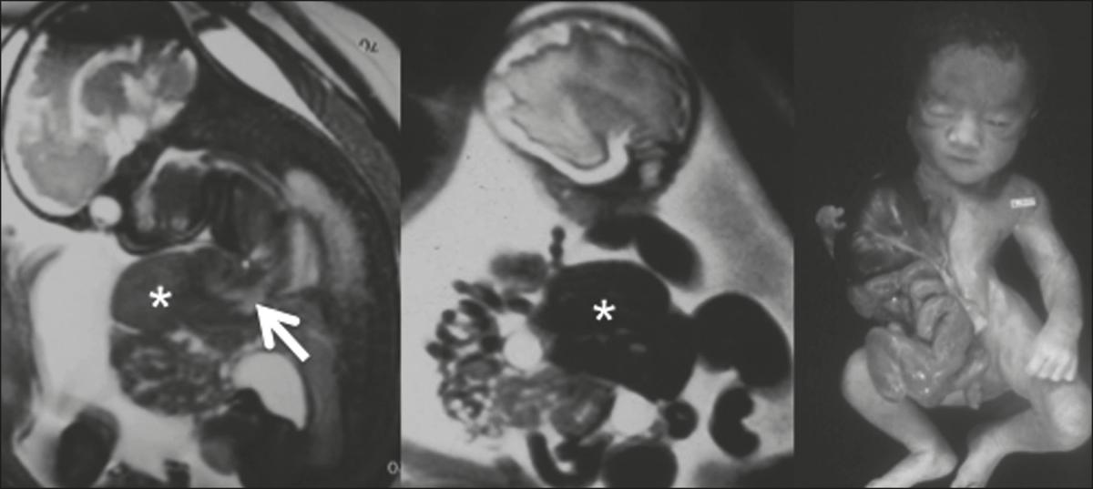Evaluation of the fetal abdomen by magnetic resonance imaging. Part 2: abdominal wall defects and tumors