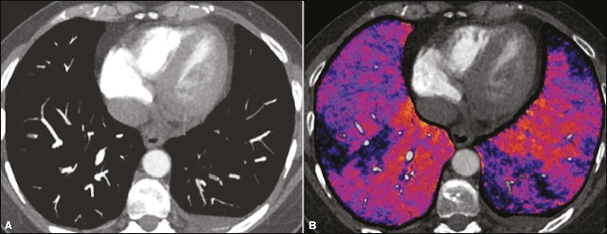 Novas técnicas no diagnóstico por imagem do tromboembolismo pulmonar