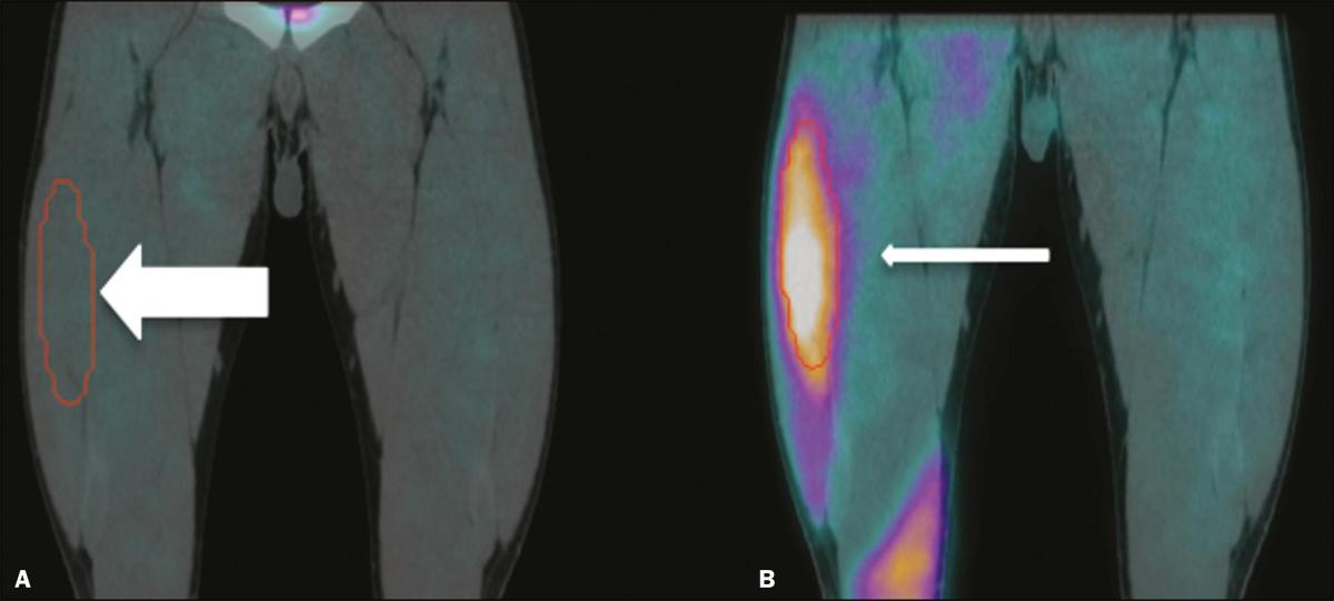 SPECT/CT with 99mTc-sestamibi for the evaluation of skeletal muscle perfusion after electrical muscle stimulation in athletes